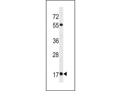 RAB19 Antibody (N-term)