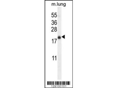TMEM80 Antibody (Center)