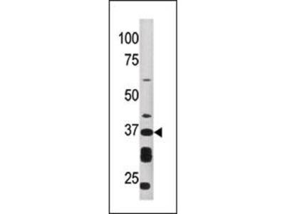 ART1 Antibody (Center)