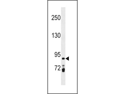 PRICKLE1 Antibody (C-term)