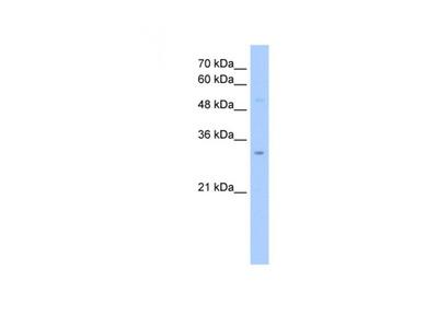 NSUN5C antibody