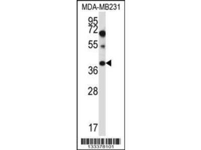 PTPLA Antibody (N-term)