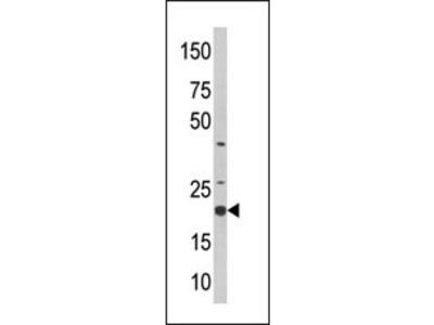SKP1 Antibody (Center)