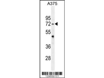TRIM56 Antibody (C-term)