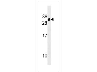 CD300E Antibody (Center)