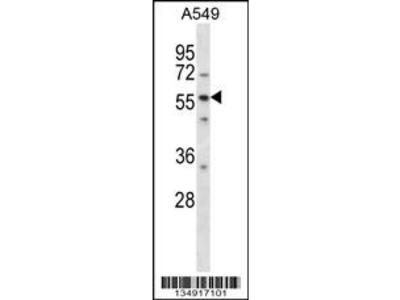 LSM14A Antibody (C-term)