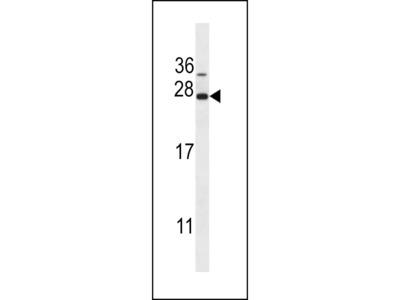 CTAG1A Antibody (N-term)