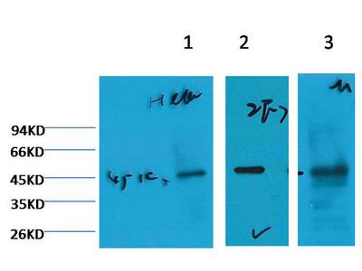 Cytokeratin 18 Mouse Monoclonal Antibody(2F7)