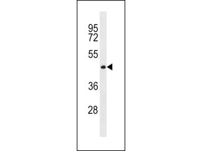 CWC27 Antibody (C-term)