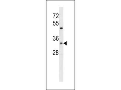 ZDHC7 Antibody (C-term)