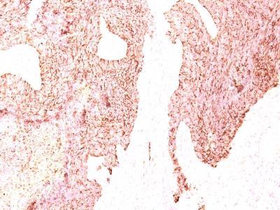 Chromogranin A