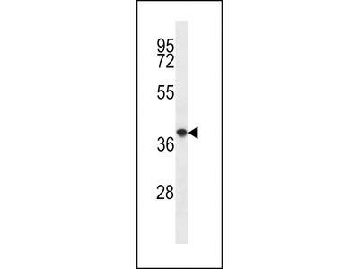 PQLC2 Antibody (C-term)