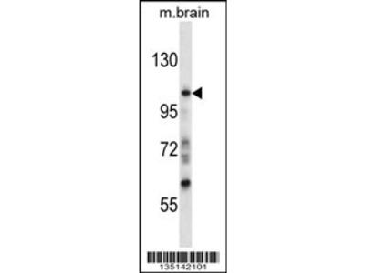 Mouse Sgk223 Antibody (N-term)