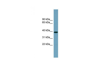 NUDCD3 antibody