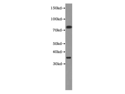 LDB3 Antibody