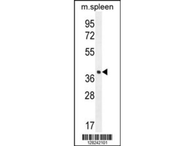 LHFPL5 Antibody (C-term)