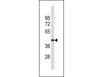 ZCCHC3 Antibody (Center)
