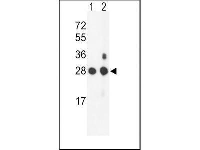 PSMB1 Antibody (C-term)