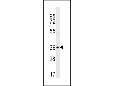 MUL1 Antibody (C-term)