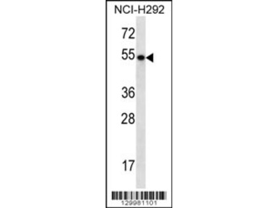 TBC1D3E Antibody (C-term)
