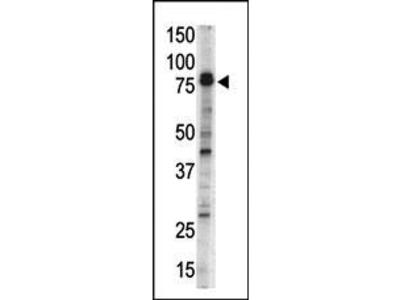 DCAMKL1 Antibody (N-term)