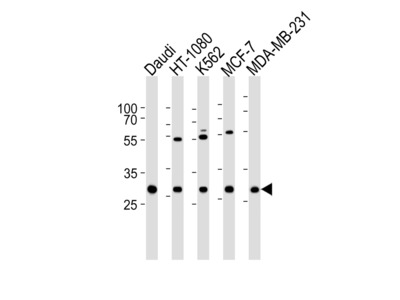 PNP Antibody (Center)