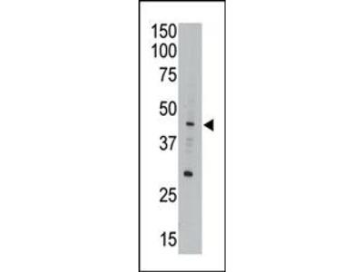 APOBEC3G (CEM15) Antibody (Center E133)