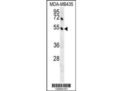 GKAP1 Antibody (C-term)