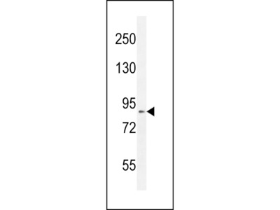 DDX11 Antibody (Center)