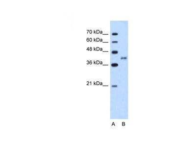 Bradykinin Receptor B2 antibody