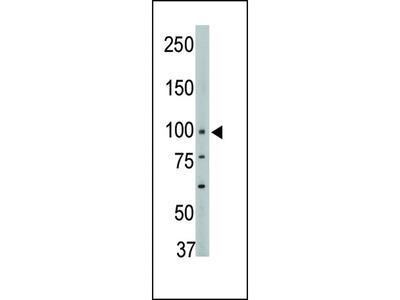PTPH1 Antibody (Center)
