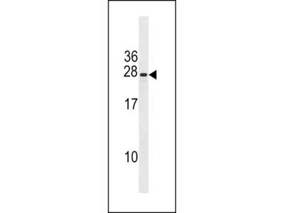 CXorf41 Antibody (C-term)