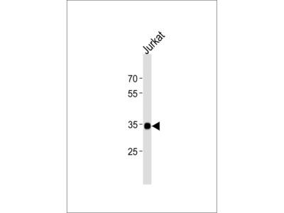 SOX18 Antibody (N-term)