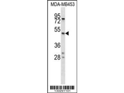 SERPINA5 Antibody (N-term)