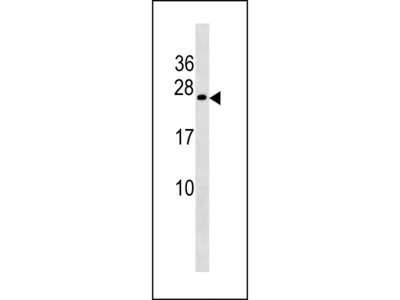 COX4NB Antibody (Center)