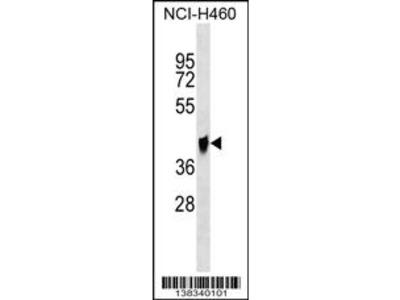 QPCTL Antibody (C-term)