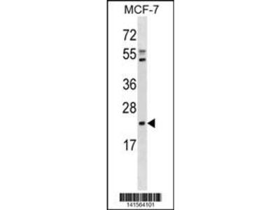 EBP Antibody (C-term)