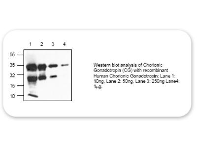 Chorionic Gonadotropin (CG) Antibody