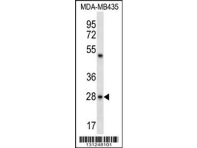 CDRT15L2 Antibody (C-term)