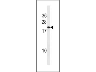 PPIAL4A Antibody (Center)