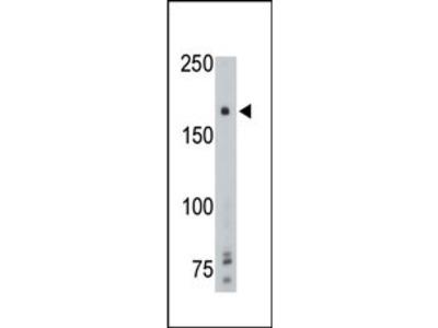PTP gamma Antibody (Center)
