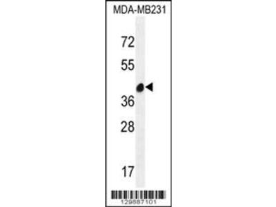 LRRC72 Antibody (C-term)