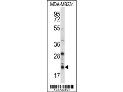 HIST1H1D Antibody (Center)
