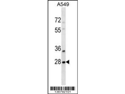 SNF8 Antibody (N-term)