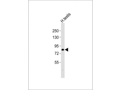 CXXC1 Antibody (C-term)