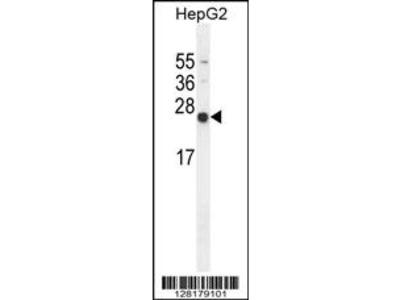 NUDT15 Antibody (C-term)