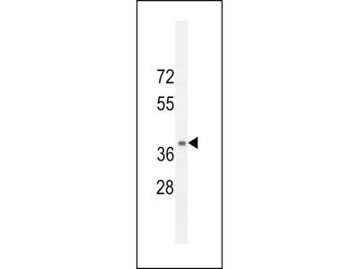 NPSR1 Antibody (C-term)