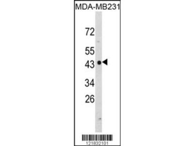 NDRG1 Antibody (N-term)