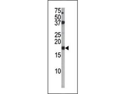 Phospho-p16-INK4A (S140) Antibody