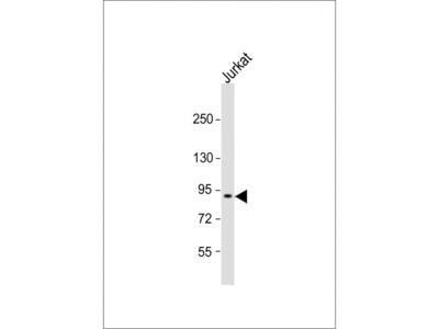 CTAGE6P Antibody (C-term)